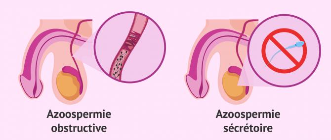 Types d'azoospermie qui provoquent l'infertilité