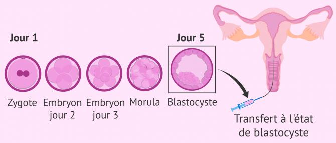 Culture séquentielle pour le transfert embryonnaire