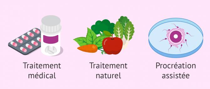 Différents traitements de l'infertilité masculine