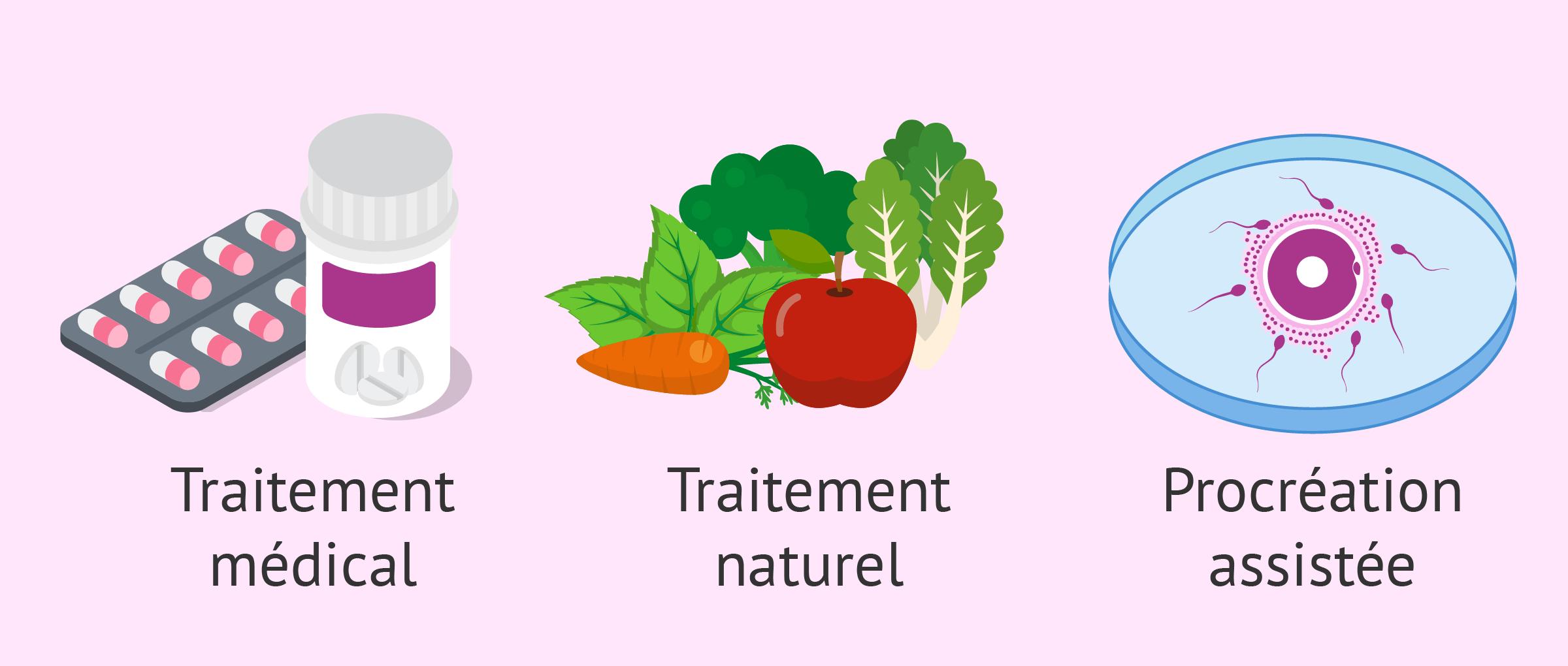 Traiter l'infertilité chez l'homme: solutions naturelles ou PMA?