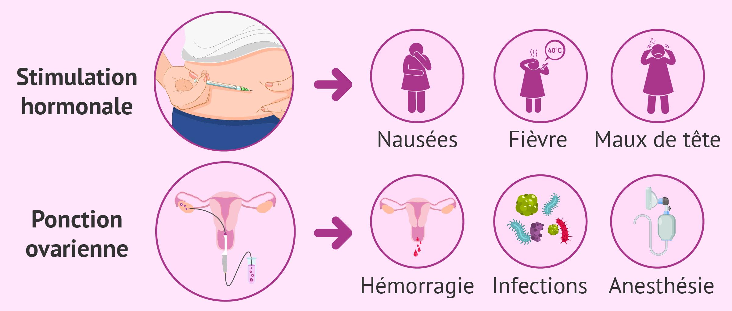 Effets secondaires et risques du don d'ovocytes