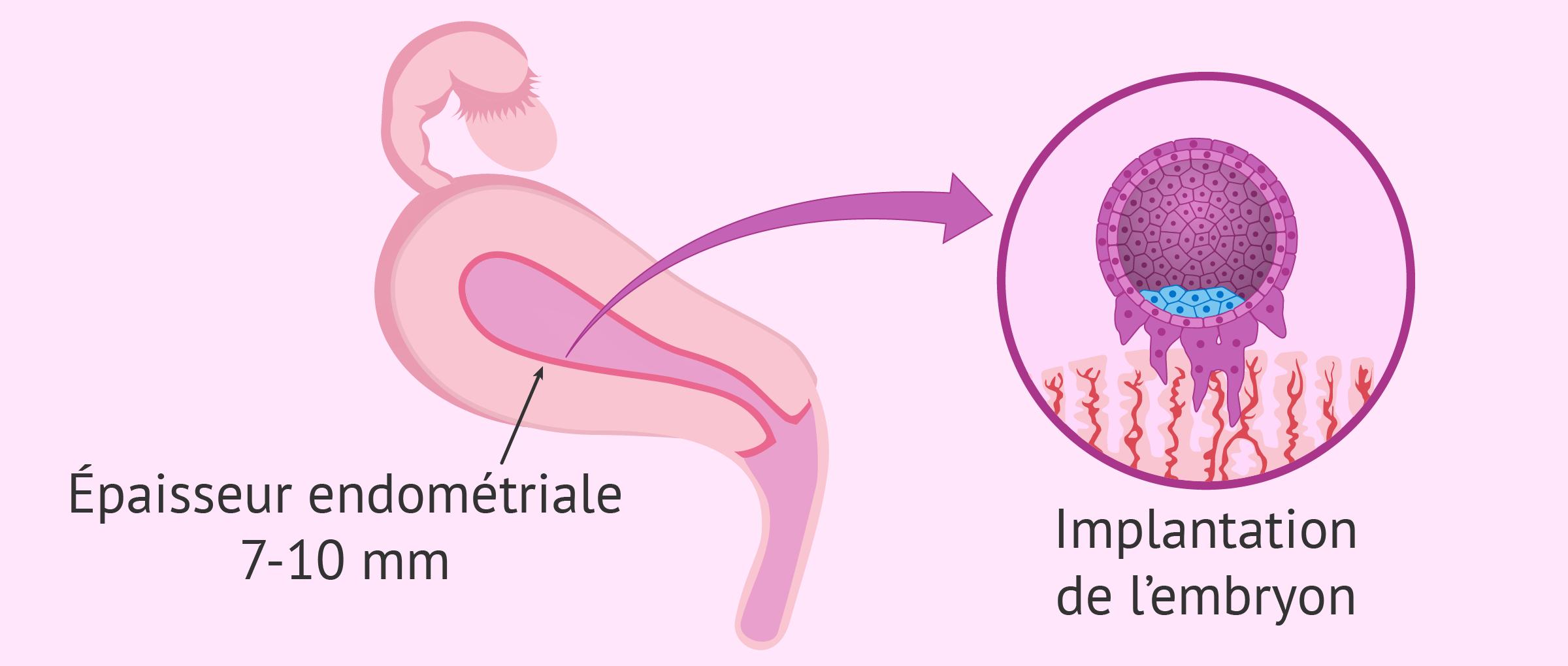 L'endomètre: comment améliorer son épaisseur pour la grossesse?