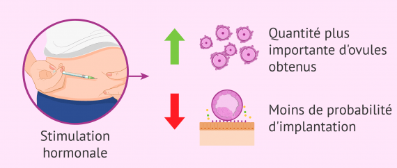 La stimulation hormonale affecte la qualité de l'endomètre
