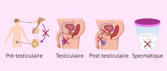 Principaux facteurs affectés par l'infertilité masculine