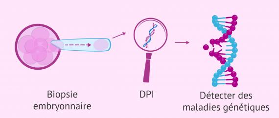 Sélection du sexe du bébé avec DPI