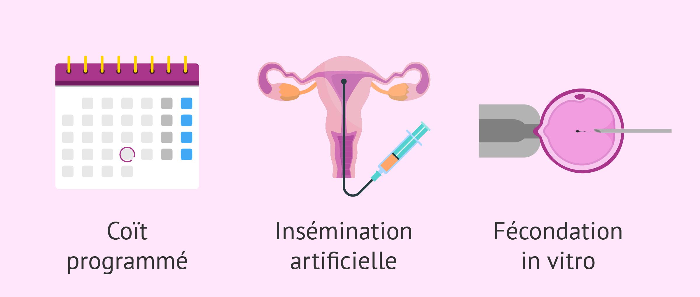 Imagen: Traitement infertilité femme