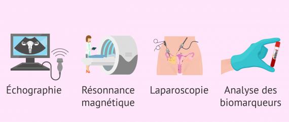 Comment diagnostiquer l'endométriose?