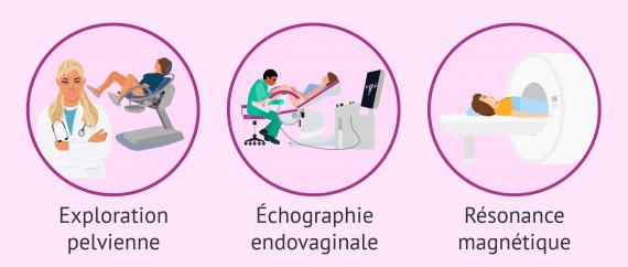 Comment est diagnostiquée l'adénomyose?