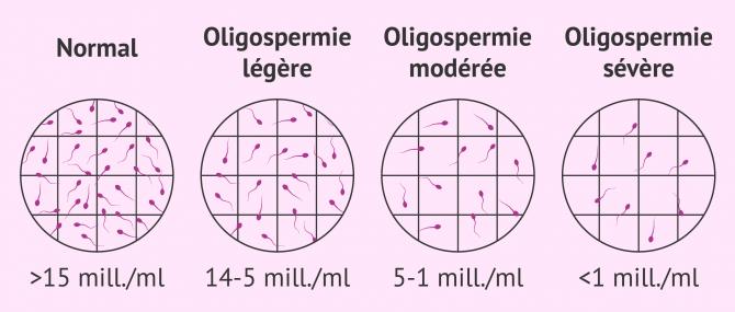 Degrés d'oligospermie observés au microscope
