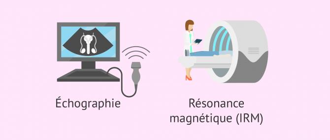 Diagnostic de la cryptorchidie par échographie et IRM