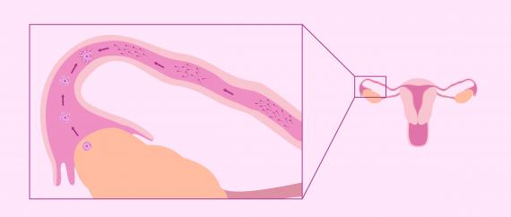 Fécondation naturelle des trompes de Fallope
