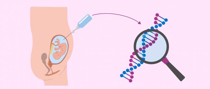 L'amniocentèse est un examen réalisé pour analyser le liquide amniotique