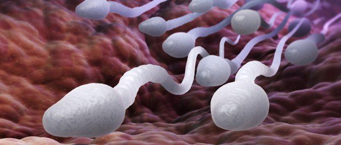 L'oligoasthénotératozoospermie est un ensemble d'anomalies des spermatozoïdes