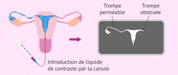 Résultat de l'hystérosalpingographie et obstruction tubaire