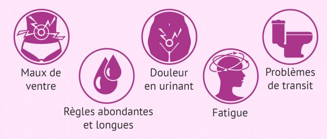 Imagen: Symptômes de la patiente atteinte d'endométriose