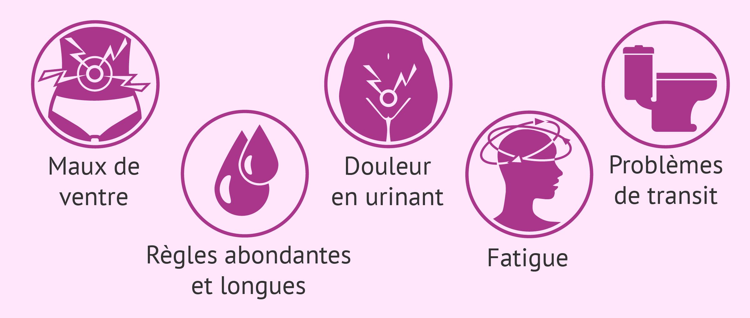 Symptômes de la patiente atteinte d'endométriose