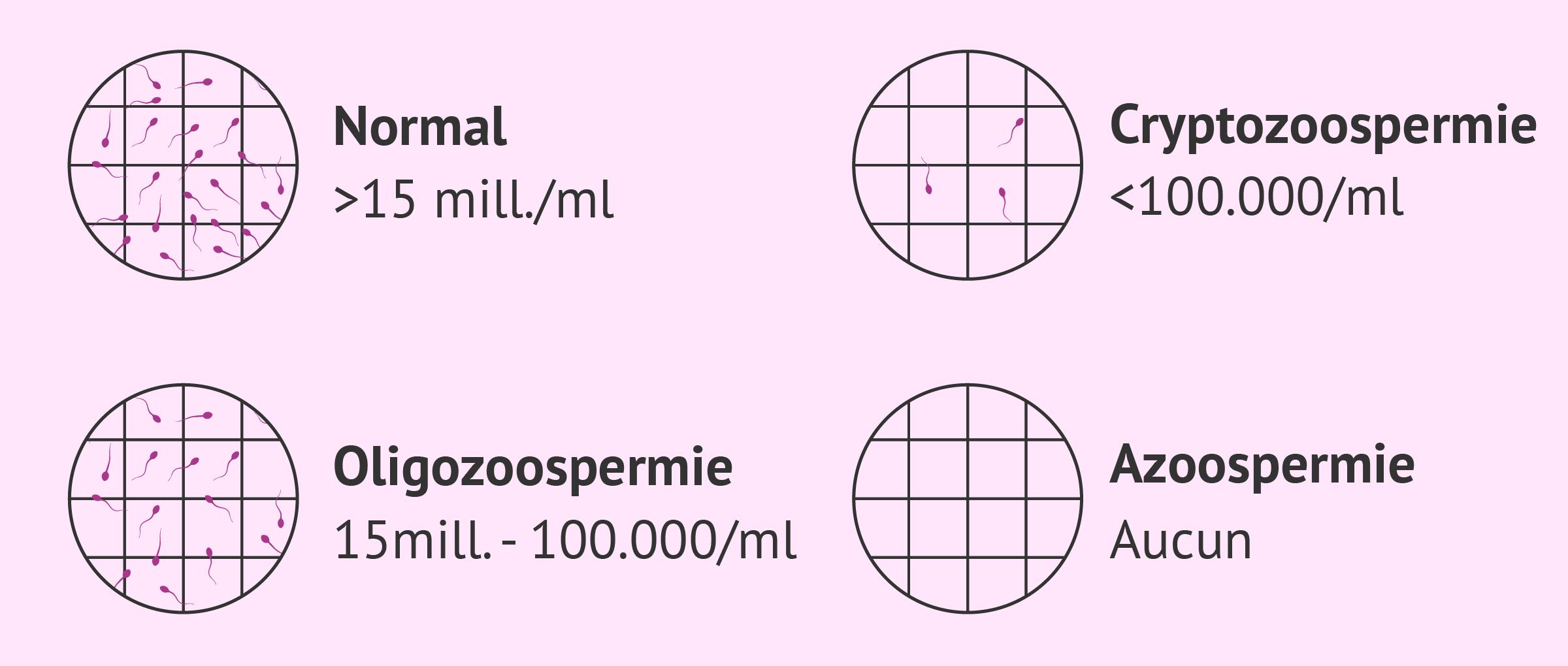 Quelles anomalies des spermatozoïdes produisent l'infertilité?