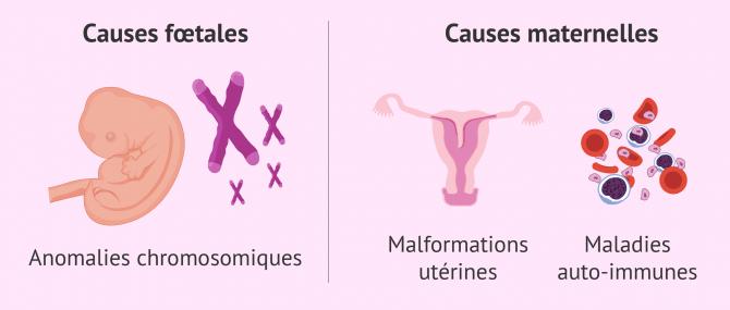 Qu'est-ce que la fausse-couche ou avortement spontané?