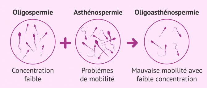 Diagnostic d'oligoasthénozoospermie