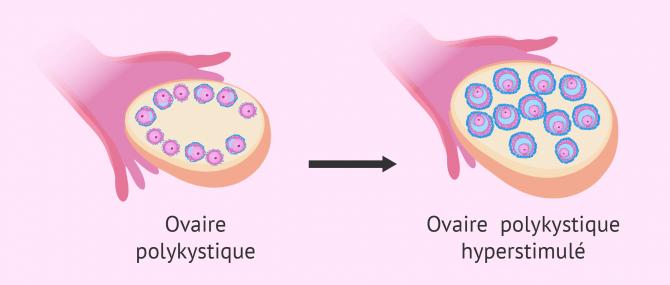 Imagen: ovaire polykistique stimulation