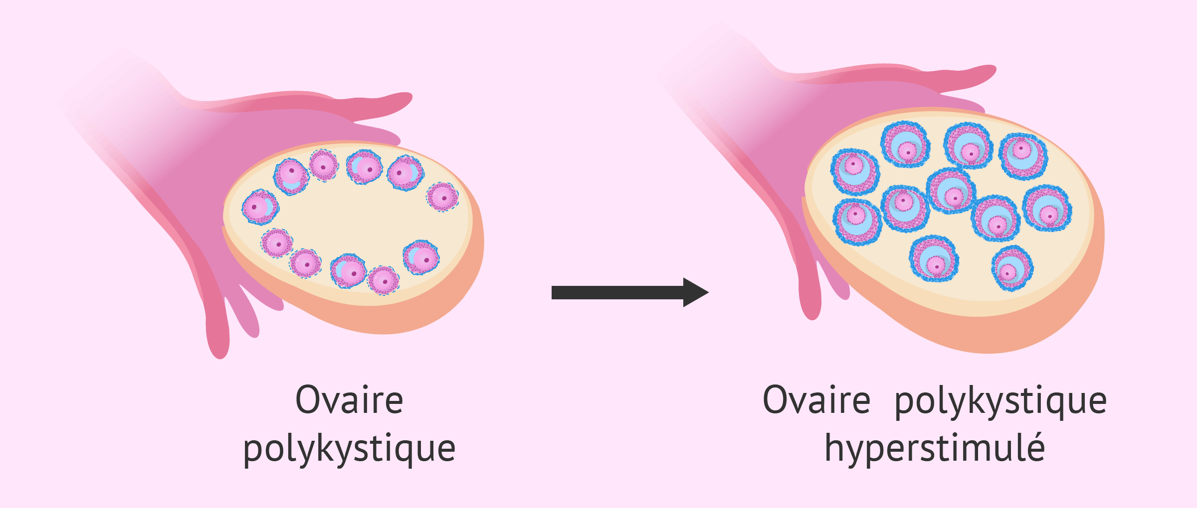 Hyperstimulation ovarienne avec un SOPK