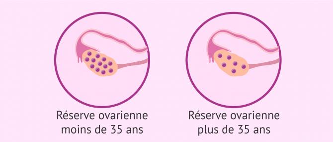 La réserve ovarienne: quelle est son influence sur la fertilité?