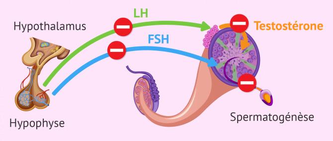 Imagen: Facteur endocrinien infertilité masculine