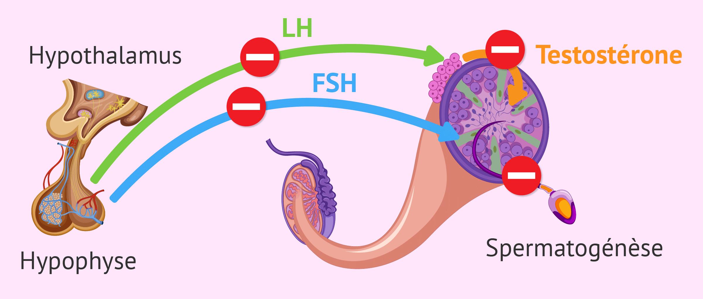 Le facteur endocrinien dans la stérilité masculine