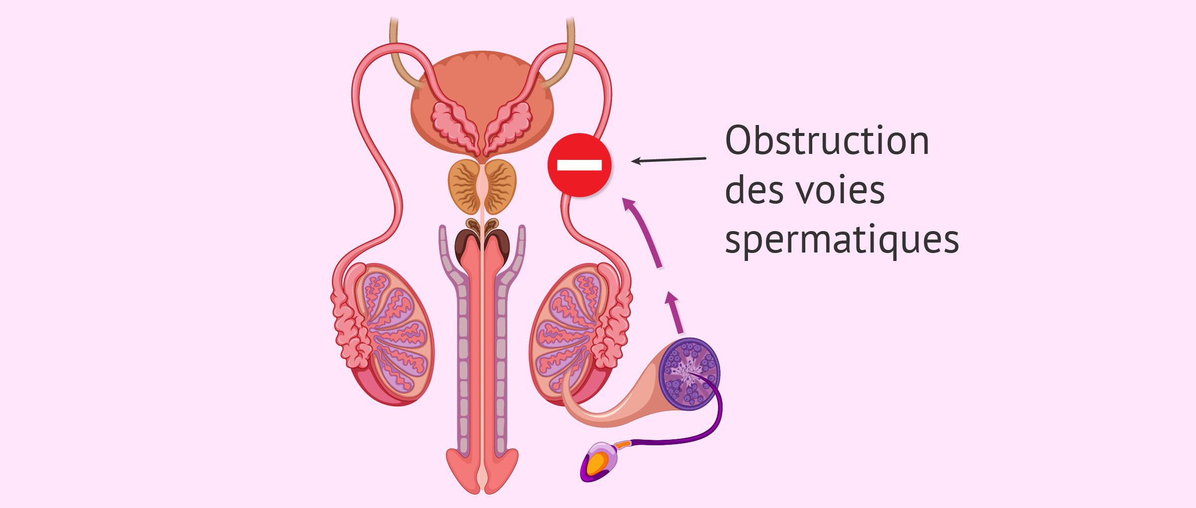 Facteur post-testiculaire dans la stérilité masculine