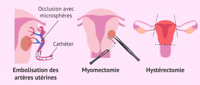 Imagen: Comment traiter les fibromes?
