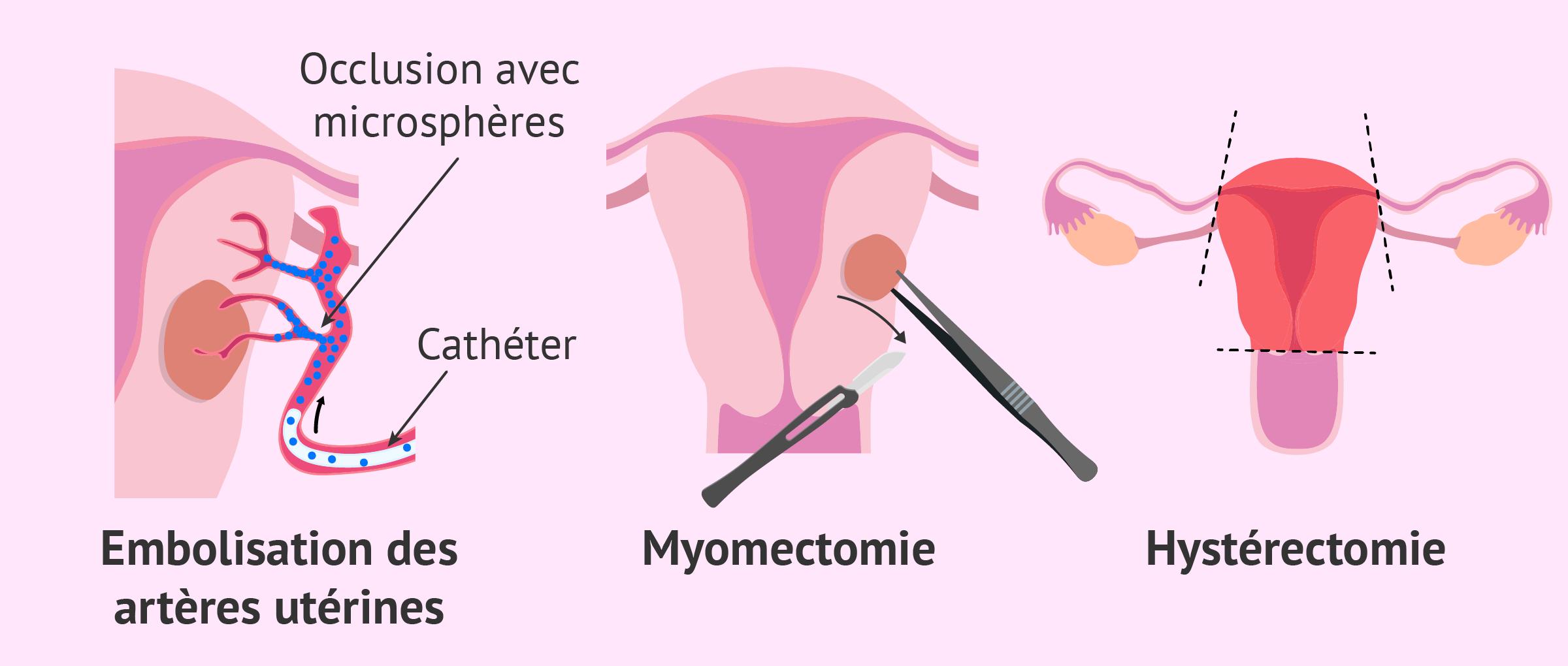 Traitements invasifs de la myomatose