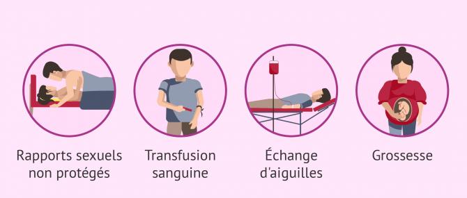 Imagen: transmission VIH
