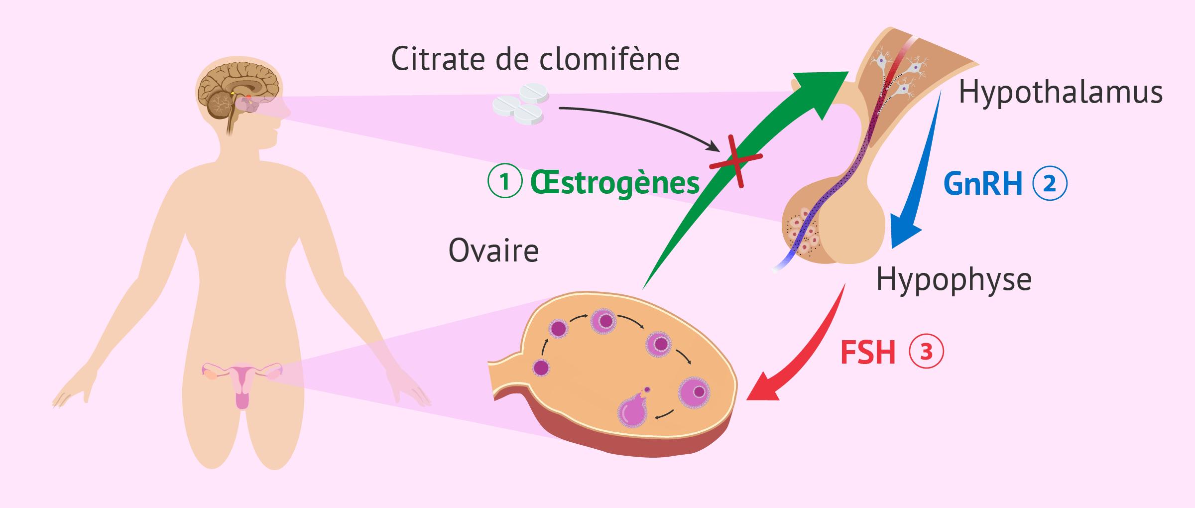 Citrate de clomifène pour induire l'ovulation