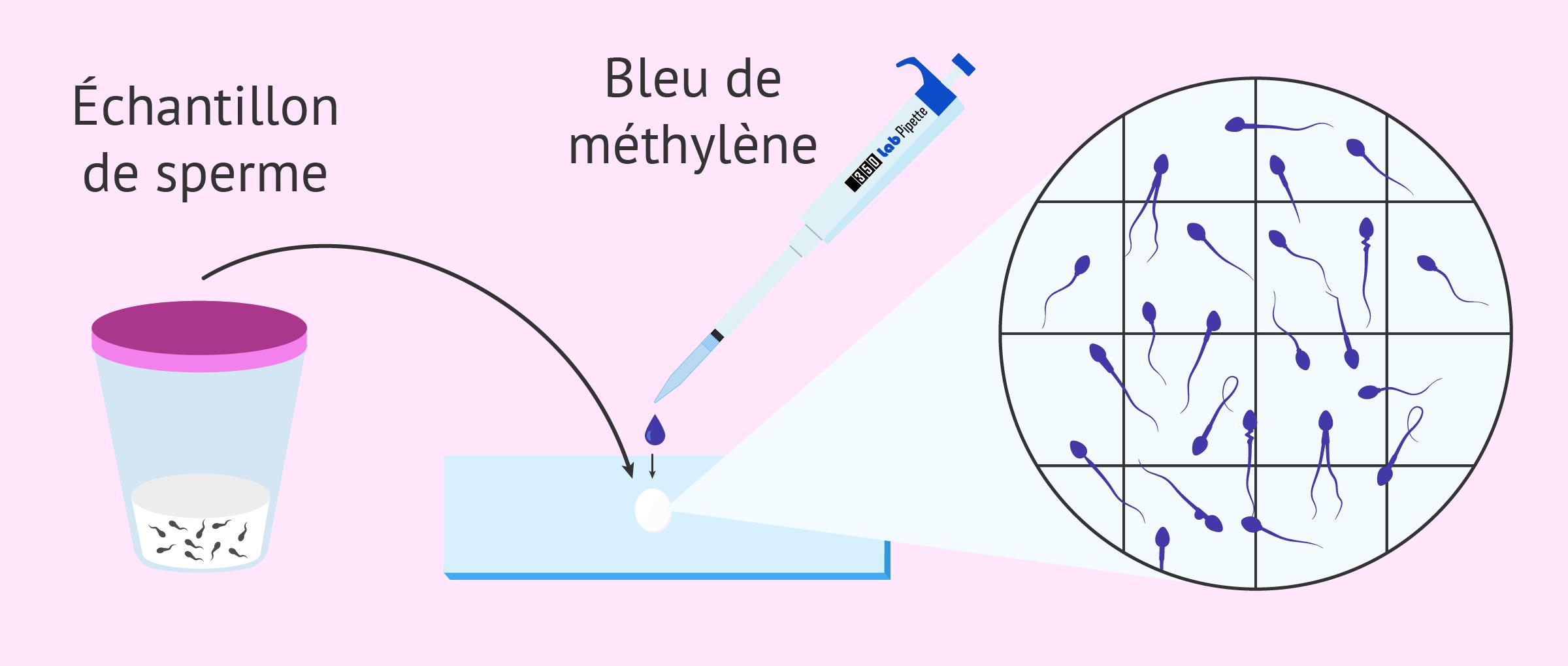 Coloration du sperme pour évaluer la morphologie des spermatozoïdes