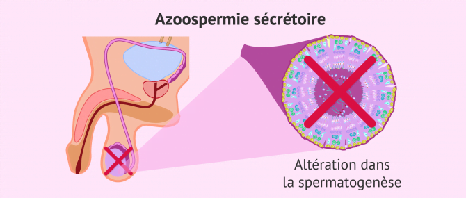 Imagen: azoospermie secretoire