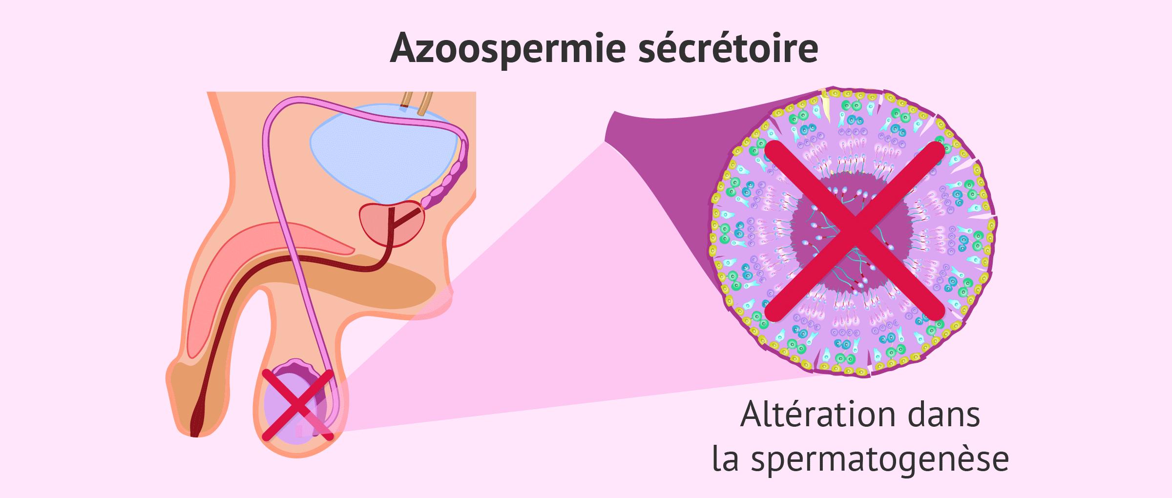 Les altérations qui empêchent la production de spermatozoïdes