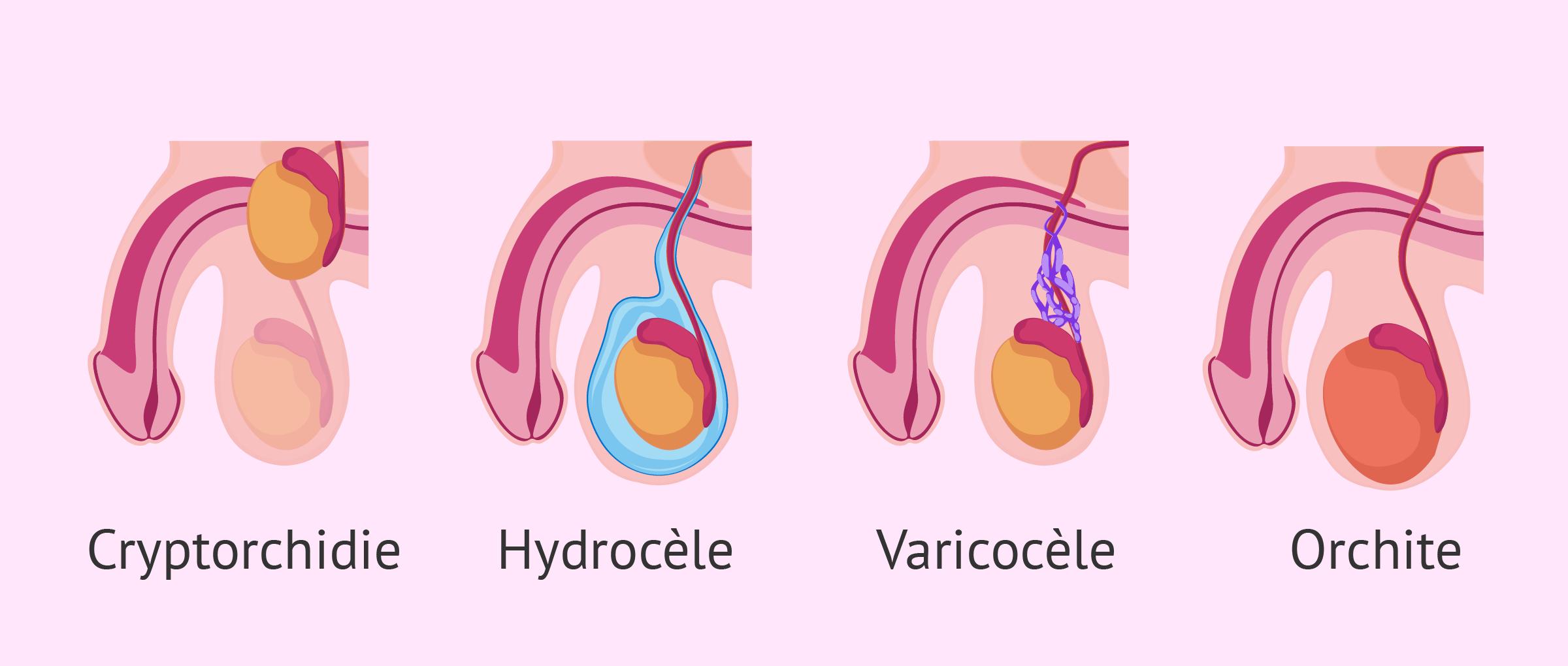 Causes testiculaires de l'oligospermie