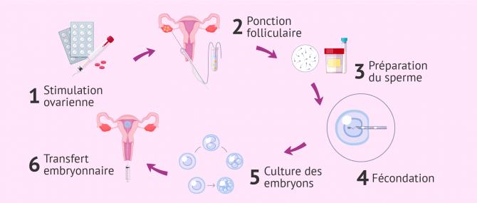 Imagen: FIV avec don de sperme
