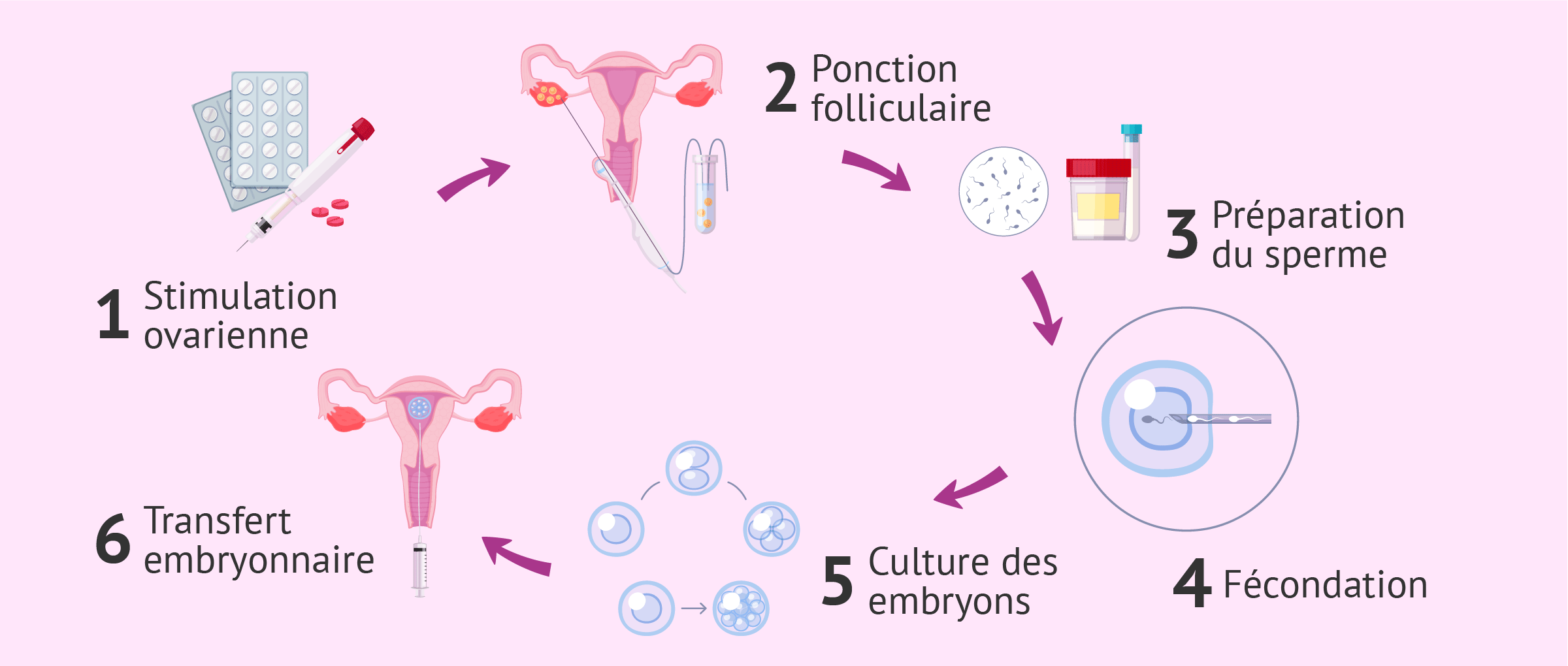 Fécondation in vitro pour femme célibataire