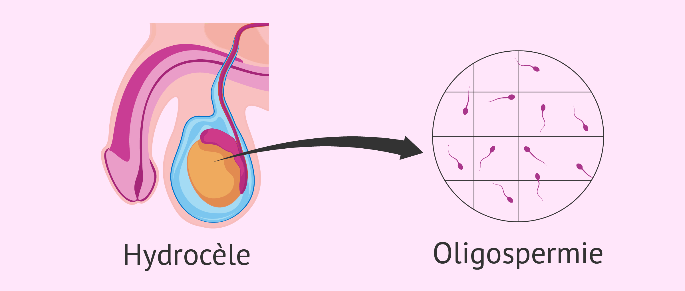 Oligospermie et hydrocèle testiculaire