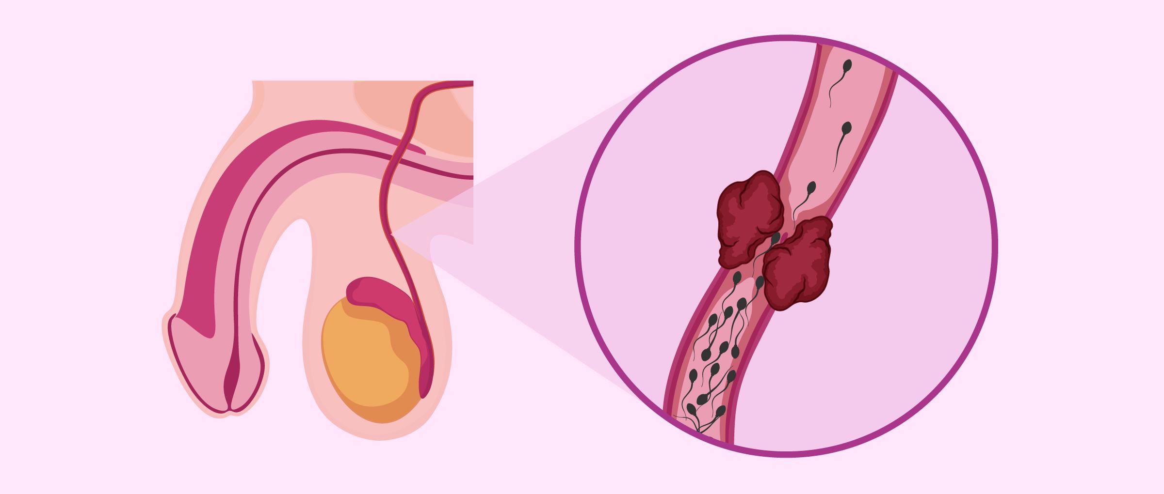 Causes post-testiculaires de l'oligospermie