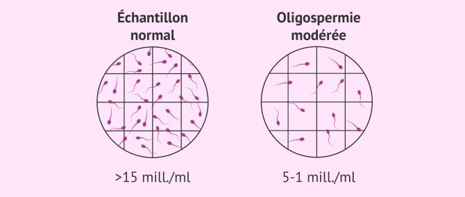 Imagen: Oligospermie moderee