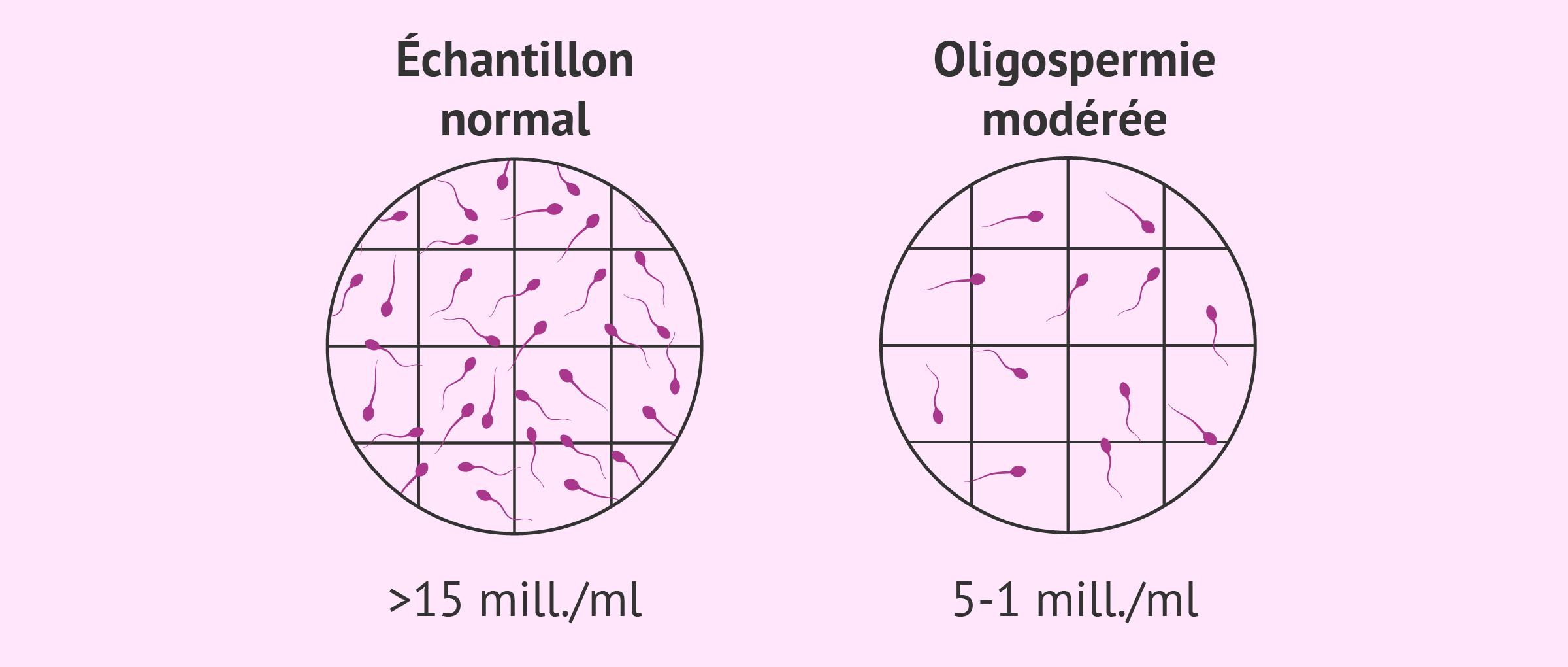 Oligospermie modérée