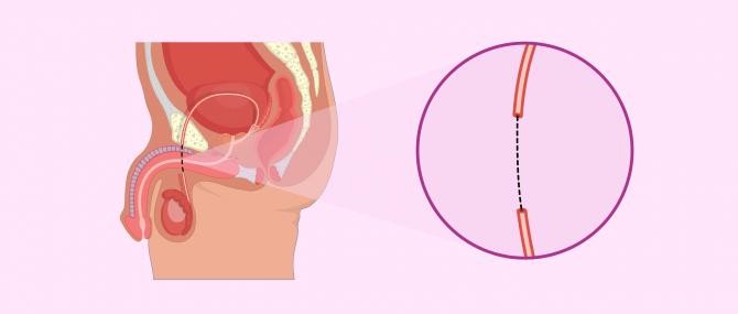 Imagen: recanalisation des canaux spermatiques
