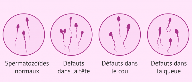 Quels types de malformations spermatiques existe-t-il?