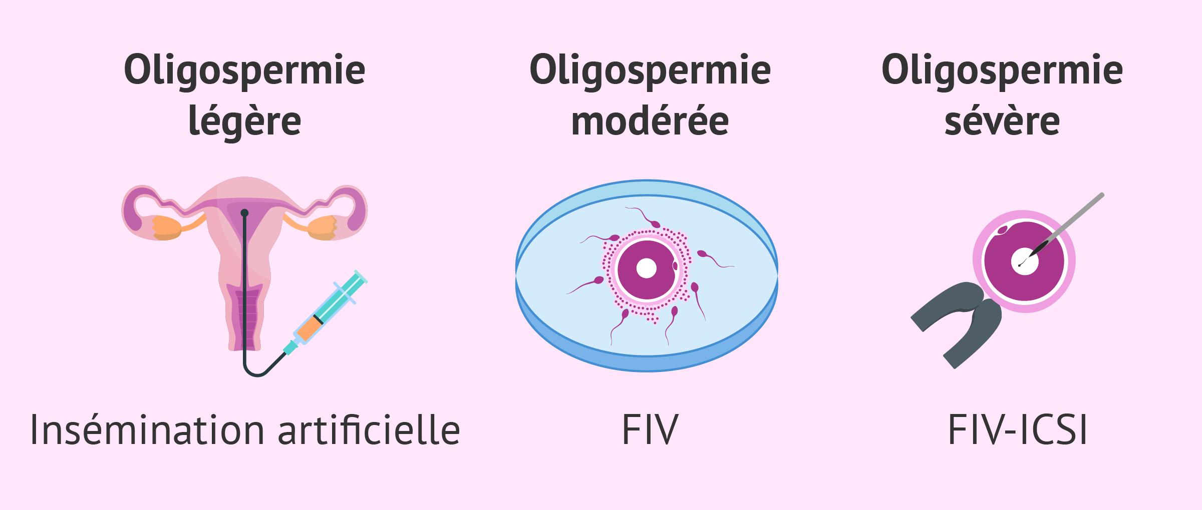 PMA pour les patients atteints d'oligospermie