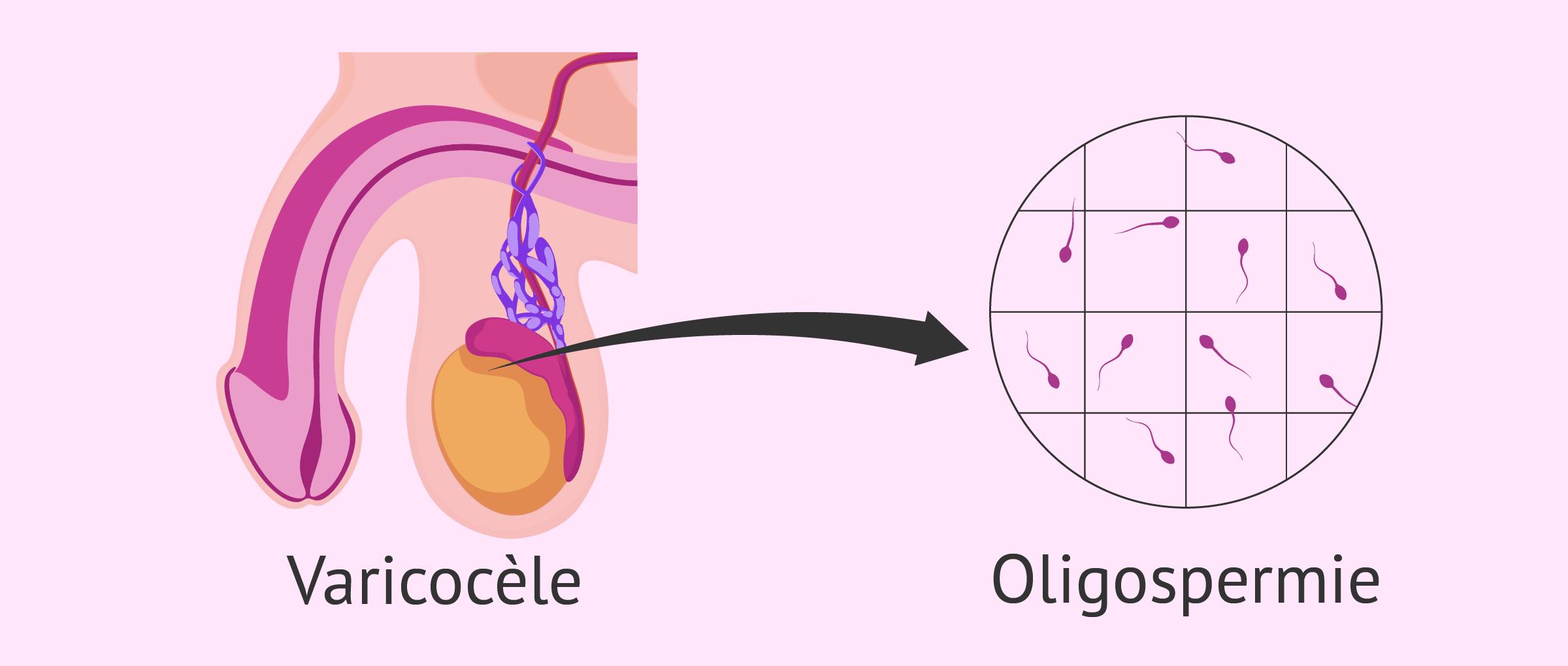 Oligospermie due à la varicocèle testiculaire