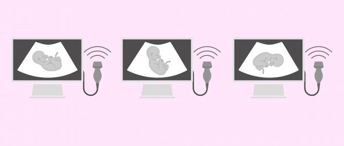 Imagen: Positions pour accouchement par césarienne