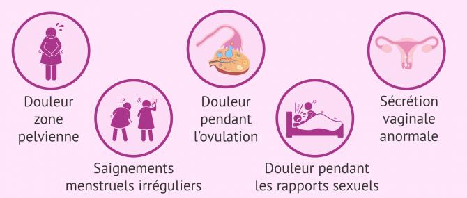 Imagen: Symptômes de la salpingite