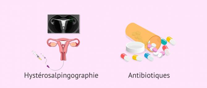 Imagen: traitement salpingite hysterosalpingographie antibiotiques